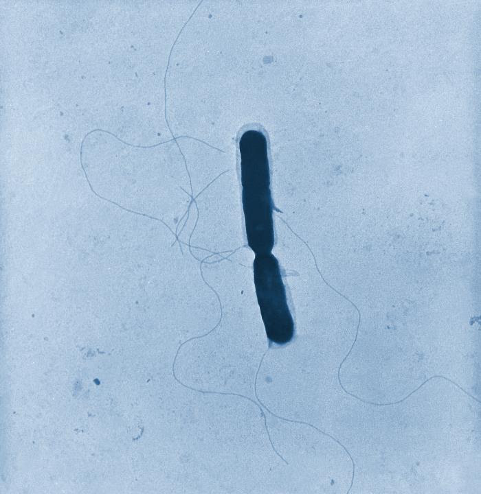 Transmission electron microscopic image of a Listeria sp. bacterium