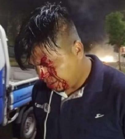 camarografo herido