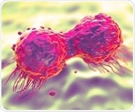 Study suggests new treatment option for most lethal form of breast cancer