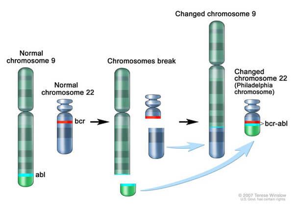 Philadelphia chromosome image