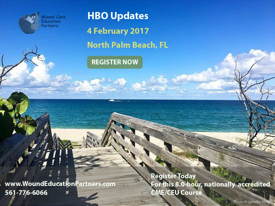 HBO Updates February 2017 North Palm Beach FL