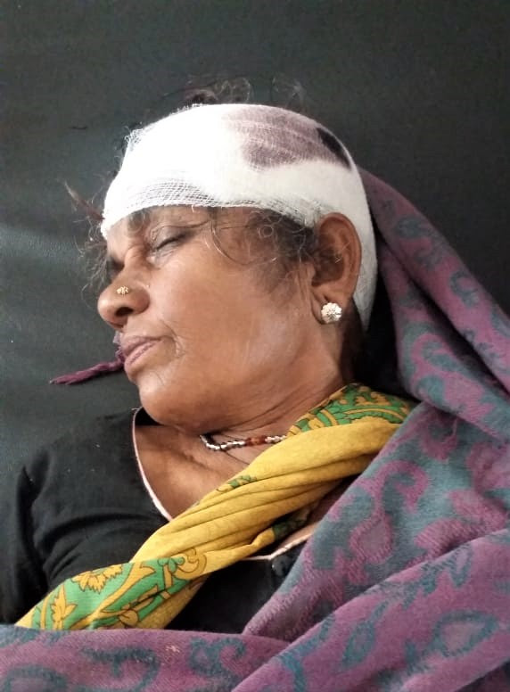 Hindu extremists hit the mother of pastor Basant Kumar Paul, Lakhpati Devi, with an axe in Parihara, Jharkhand state, India, on Nov. 12, 2019. (Morning Star News)