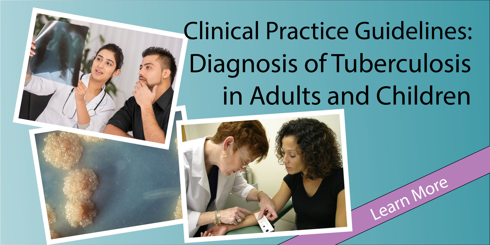 TB Diagnostic Guidelines