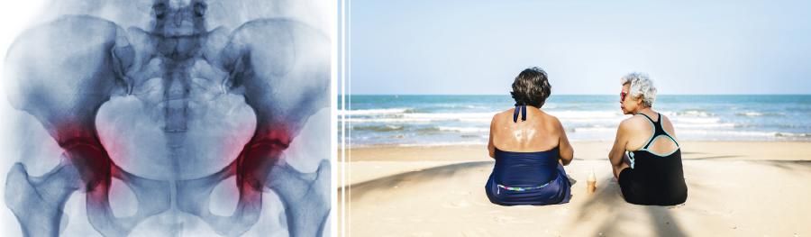Cómo tratar la artrosis sin cirugía