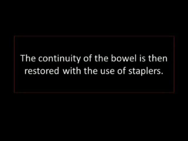 Відео: інтракорпорального лапароскопічної Y-мішок Січовий Diversion
