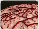 Blood-clotting factor may cause Alzheimer's disease