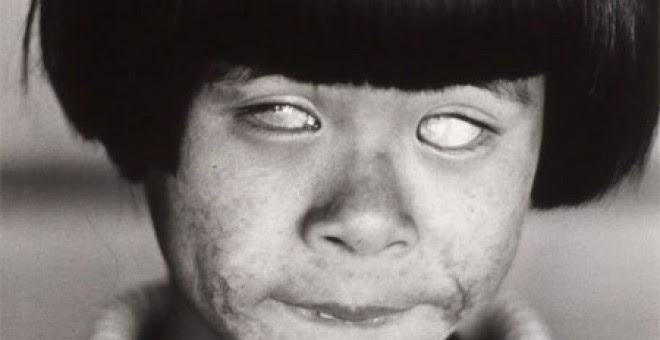 """La """"niña que vio la luz que brilla como mil soles"""" en Hiroshima, con la cara y los ojos quemados."""