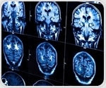 Study sheds light on the origin of most common and prevalent form of Alzheimer's disease