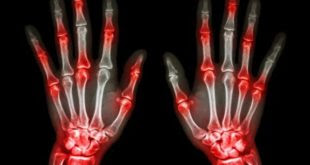 artrite-reumatoide-spr-2