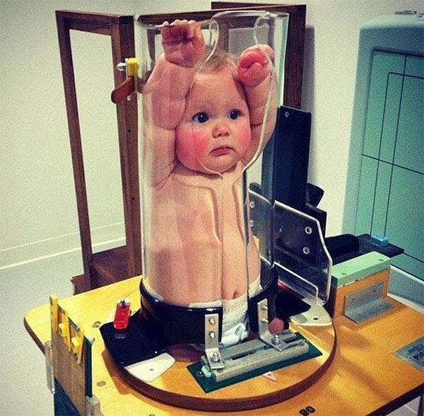 Đây là cách các bác sĩ chụp X-quang cho các em bé.