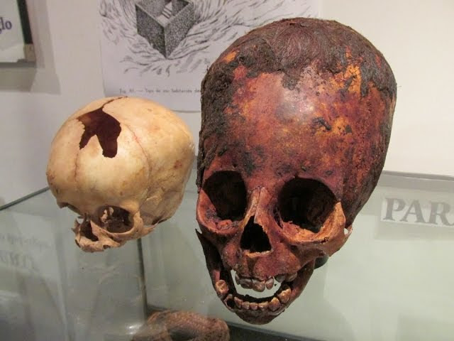 Unwrapping A 2000 Year Old Red Haired Elongated Baby Skull In Paracas Peru  Sddefault