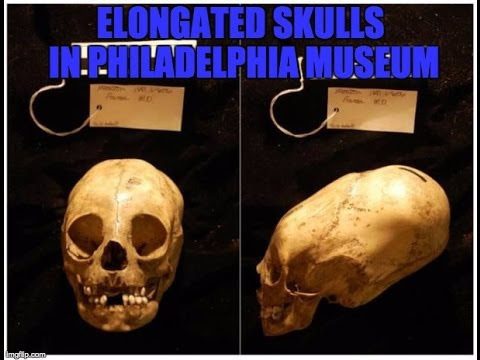 Enormous Peruvian Child's Elongated Skull In The Penn Museum  Hqdefault