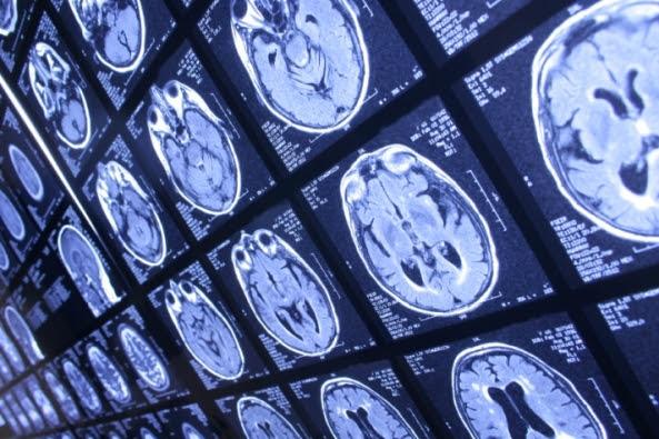 neuroscience - Inmortalidad artificial