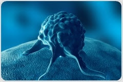 Could hormone therapy for prostate cancer increase the risk of Alzheimer's disease?