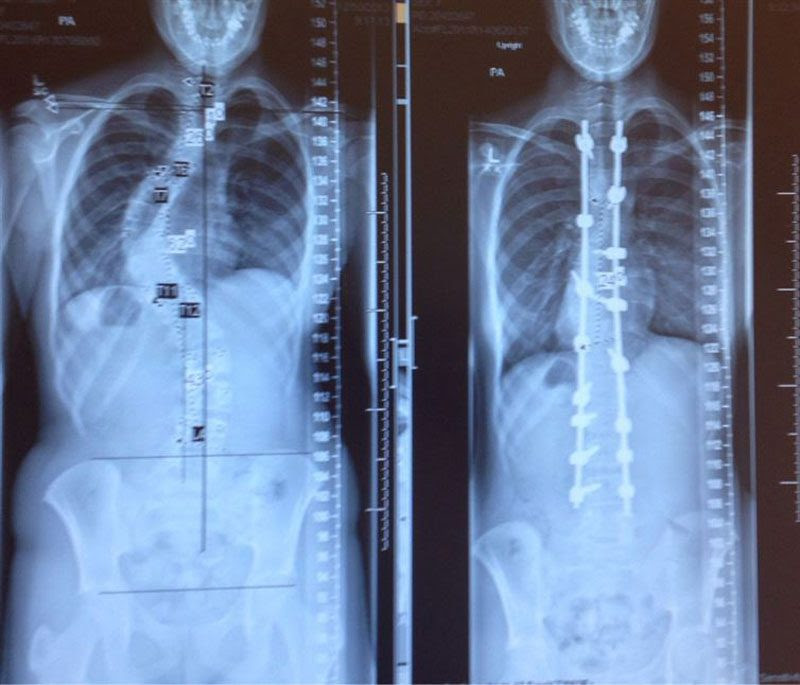 scoliosis<br>                                                          x-ray before<br>                                                          and after