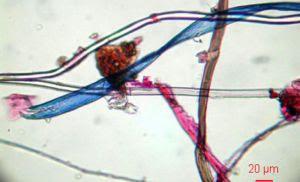 Imagen de microfibras encontradas en el medio marino.