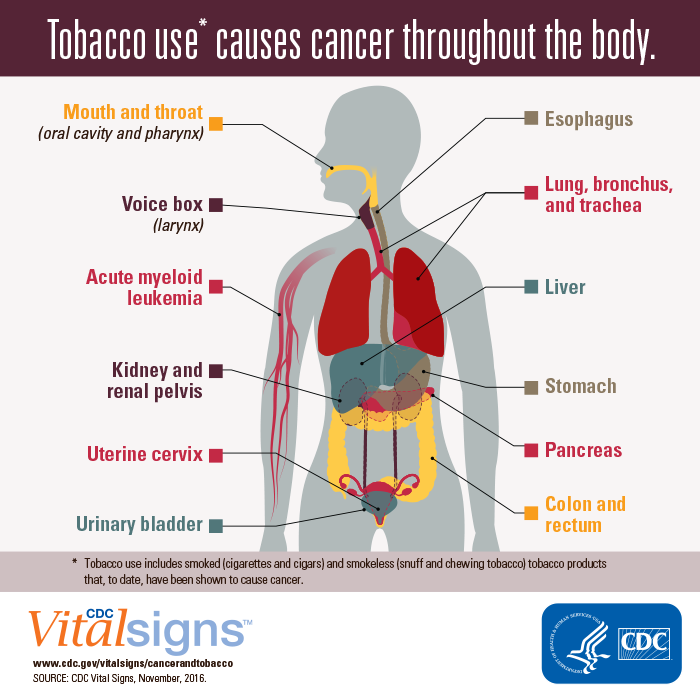 CDC Vital Signs: Cancer and Tobacco Use