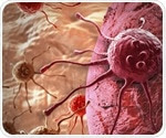 New chemoprevention trial hopes to stop dangerous lesions from progressing to cancer