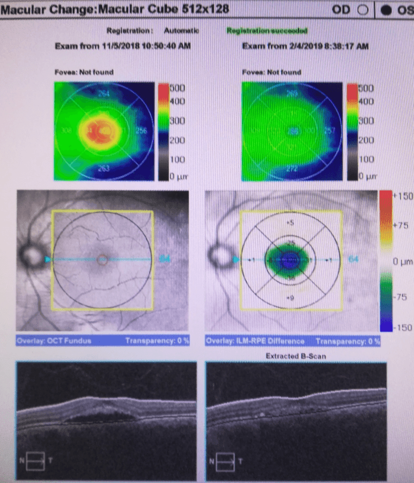 Macular Edema reduction in 3 months