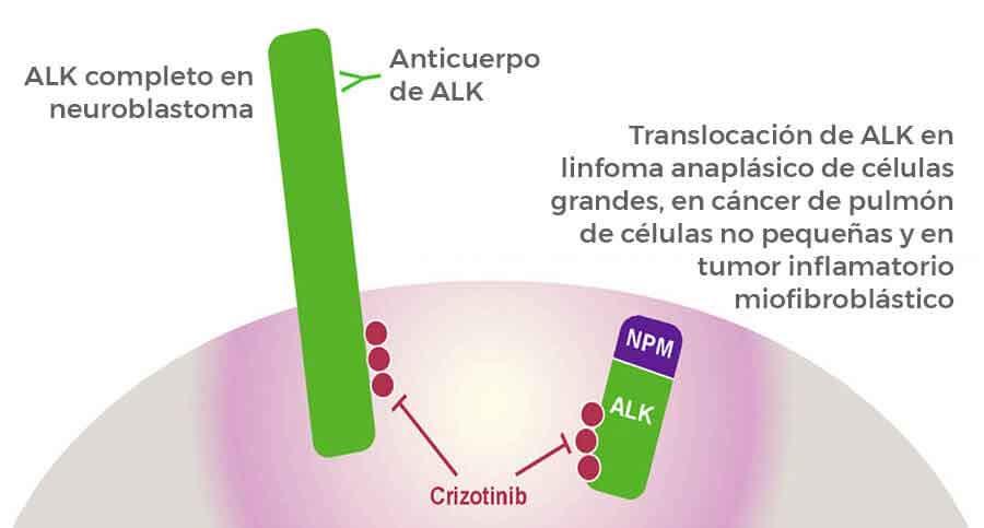 Crizotinib es prometedor para cánceres de la niñez