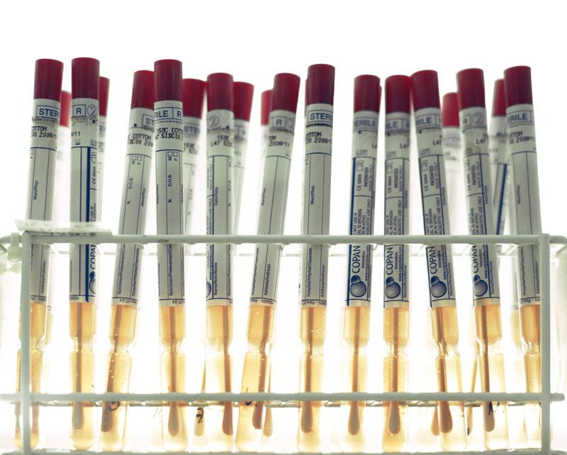 DNA specimens
