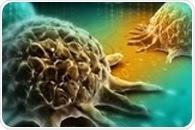 면역 세포의 밀도는 III 기 결장암 환자의 생존을 정확하게 예측할 수 있습니다