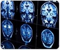 NIH researchersexplore genetic clocks to understand role of aging in neurodegeneration