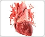 Study finds link between inflammatory signals in heart muscle cells and atrial fibrillation