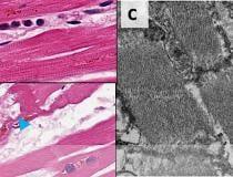 Danos causados pelo COVID às células do miocárdio nos corações de pacientes que morreram com o vírus.  COVID-19 mata cardiomiócitos em padrões aleatórios.  Essa pode ser a causa de alguns problemas cardíacos durante a infecção por COVID, mas as consequências em longo prazo ainda não são conhecidas em pacientes com COVID de longa distância.  Imagem da Circulation.  COVID danifica o coração