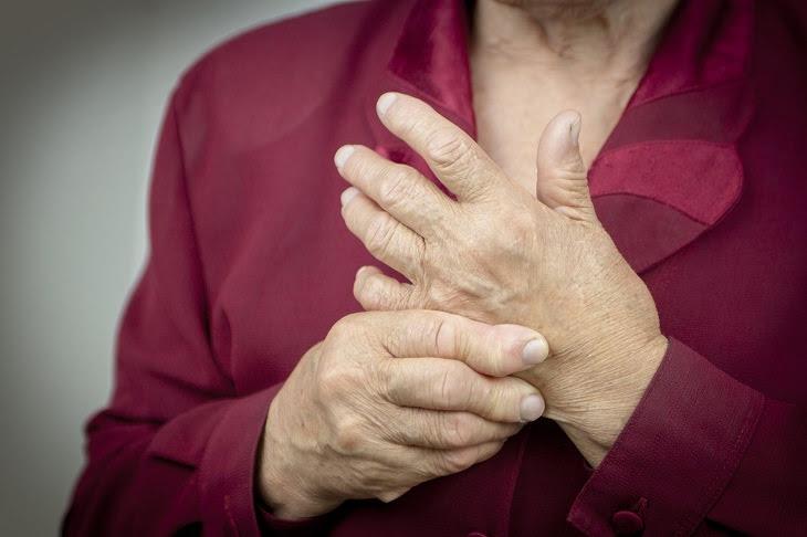 Arthritis - Fight - Prevent