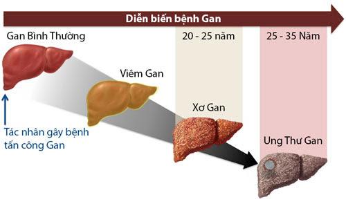 Giáo sư đầu ngành chia sẻ 6 bí quyết chăm sóc gan: Đừng để ung thư ra tay trước bạn - Ảnh 2.