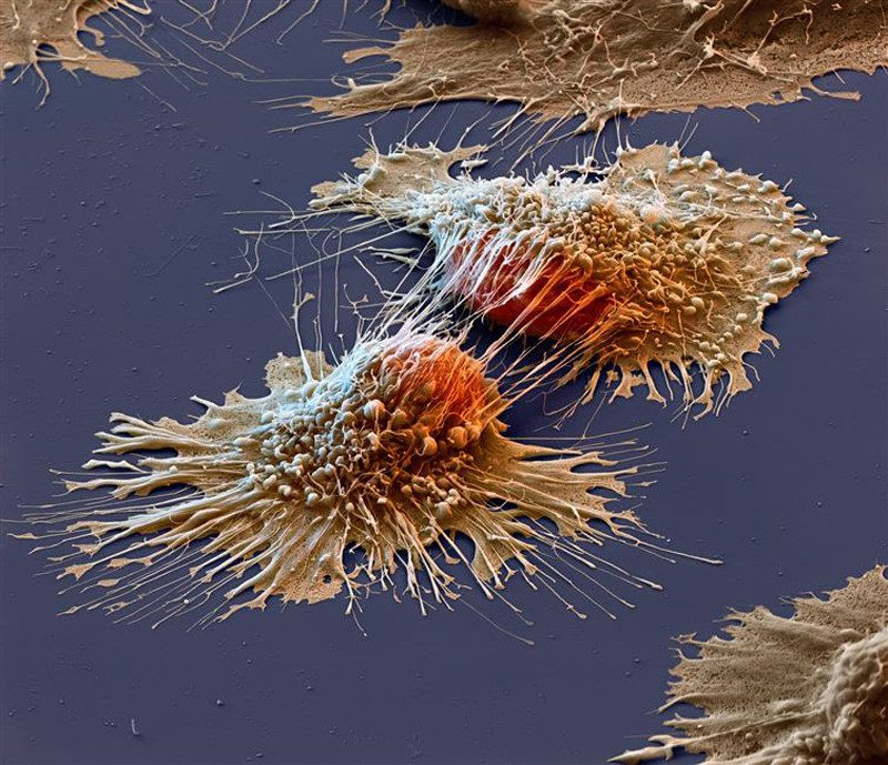 Cancer cell<br>                                                          close up