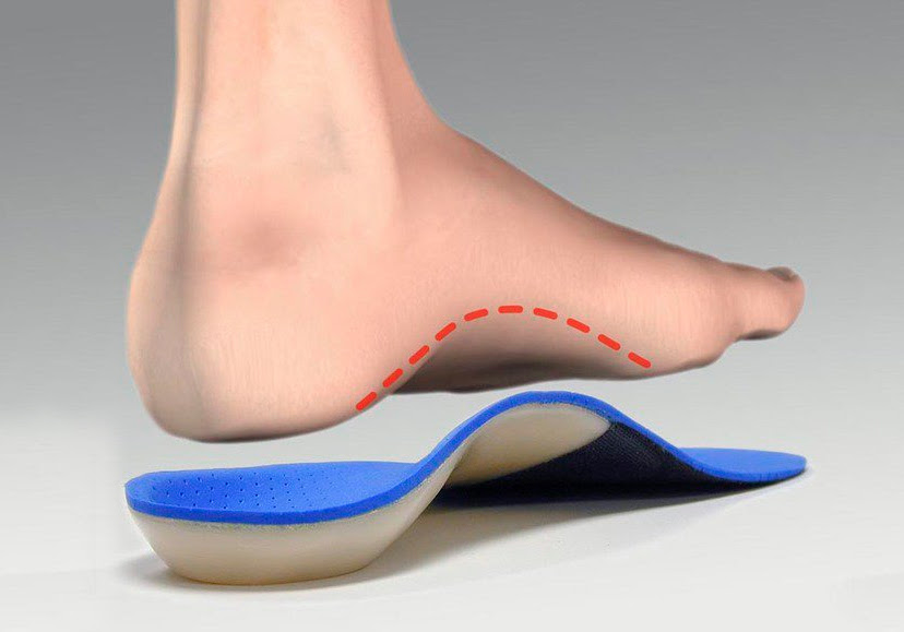 arch-supports-for-Plantar