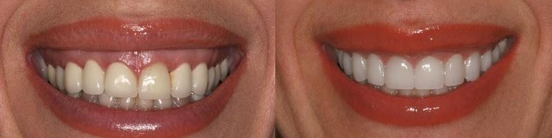 gummy smile diÅler öncesi sonrası ile ilgili görsel sonucu