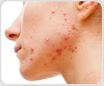 Patients with acne have increased risk of developing major depression