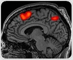 USC researchers use AI to identify blood-based markers of Alzheimer's disease