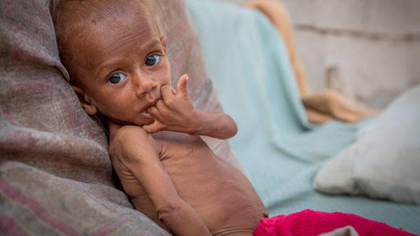 Nusair tiene 13 meses y sufre desnutrición aguda