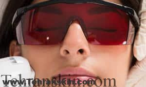 عینک محافظ چشم لیزر موهای زائد