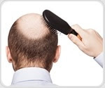 Study shows benefits of hair loss drug in improving cognitive function and vascular health