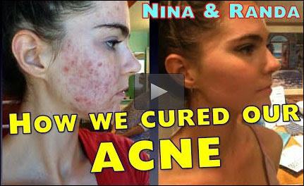 Nina & Randa cured acne