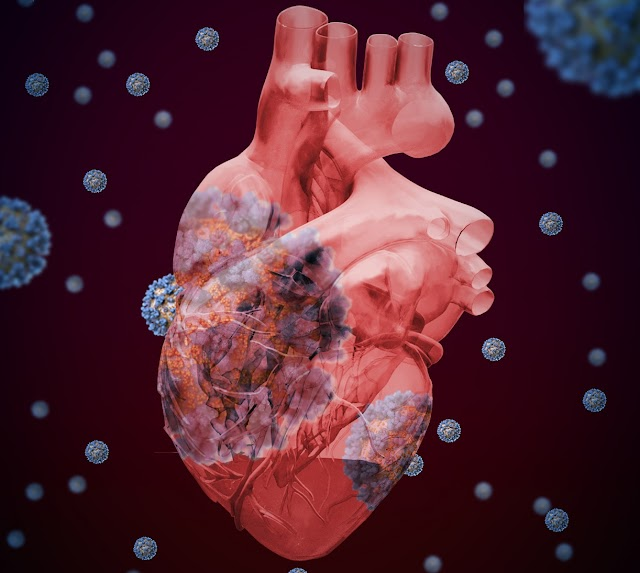 ¿Cómo afecta al corazón el COVID-19?