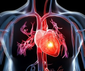 Women and men with heart attack symptoms receive different care from EMS