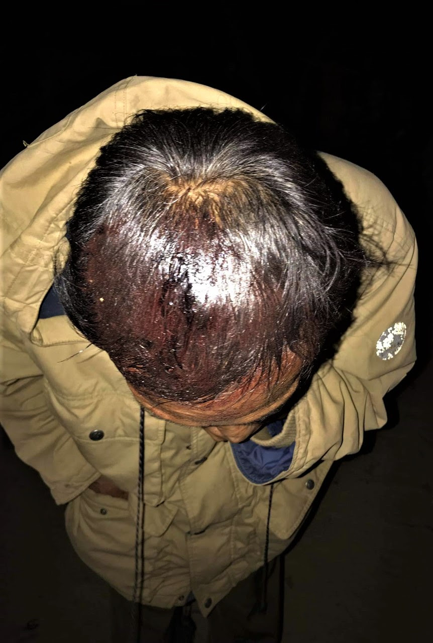 Wounded head of Christian worshipper in Paw Lwe village, central Burma on Dec. 17, 2018. (Morning Star News)