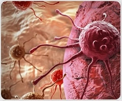 Common genetic fusion event could help identify patients with low-risk prostate cancer