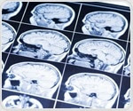 Research offers new understanding about cause of Parkinson's disease