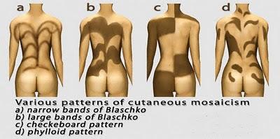 примеры мозаичного химеризма