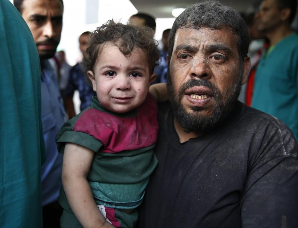 A Palestinian carries a wounded boy in the emergency room of Shifa hospital in Gaza City, northern Gaza Strip, Sunday, July 20, 2014. AP/Lefteris Pitarakis
