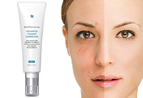 Vencedor: Skinceuticals Advanced pigment corrector