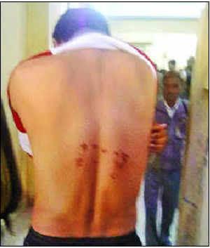 Dasna jailer brands inmate