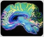 Functional connectivity MRI could help detect brain disorders and diseases